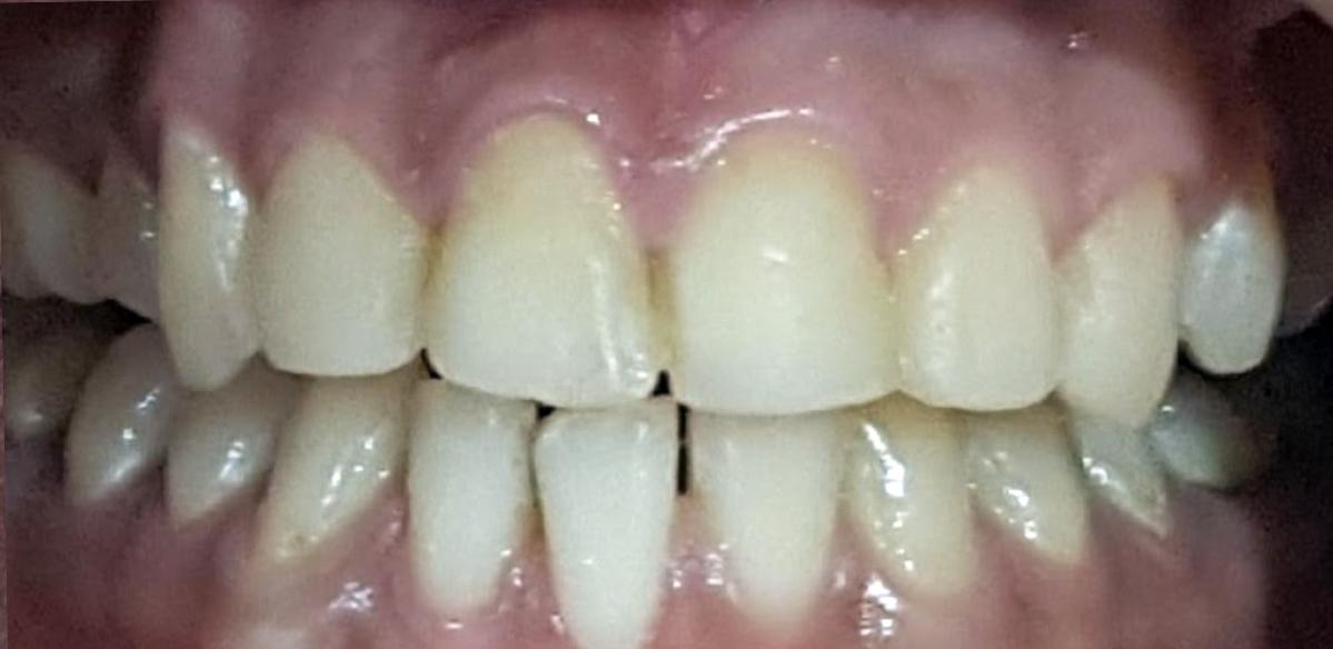 Dentist Indianapolis Before Photos