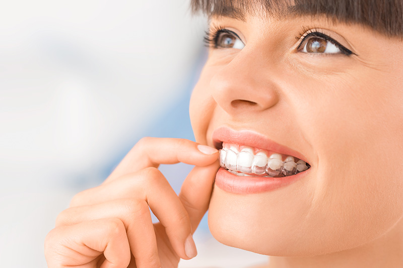 Invisalign in Indianapolis, Lafayette, and Anderson, IN